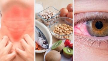 Alergias alimentarias y salud pública, un curso de la UNCUYO con el Gobierno provincial