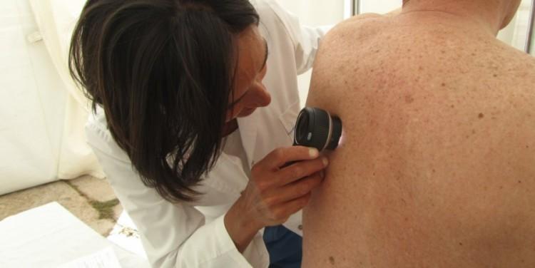 Harán controles gratuitos para prevenir el cáncer de piel