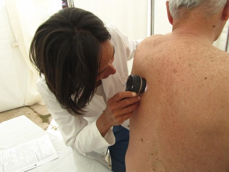 Continúan exámenes para prevenir el cáncer de piel